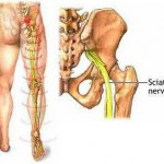 Sciatic nerve pain at vibranthealthworld